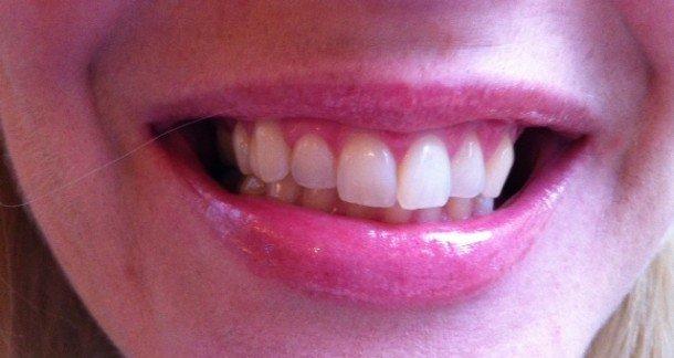 hur får man vita tänder utan blekning