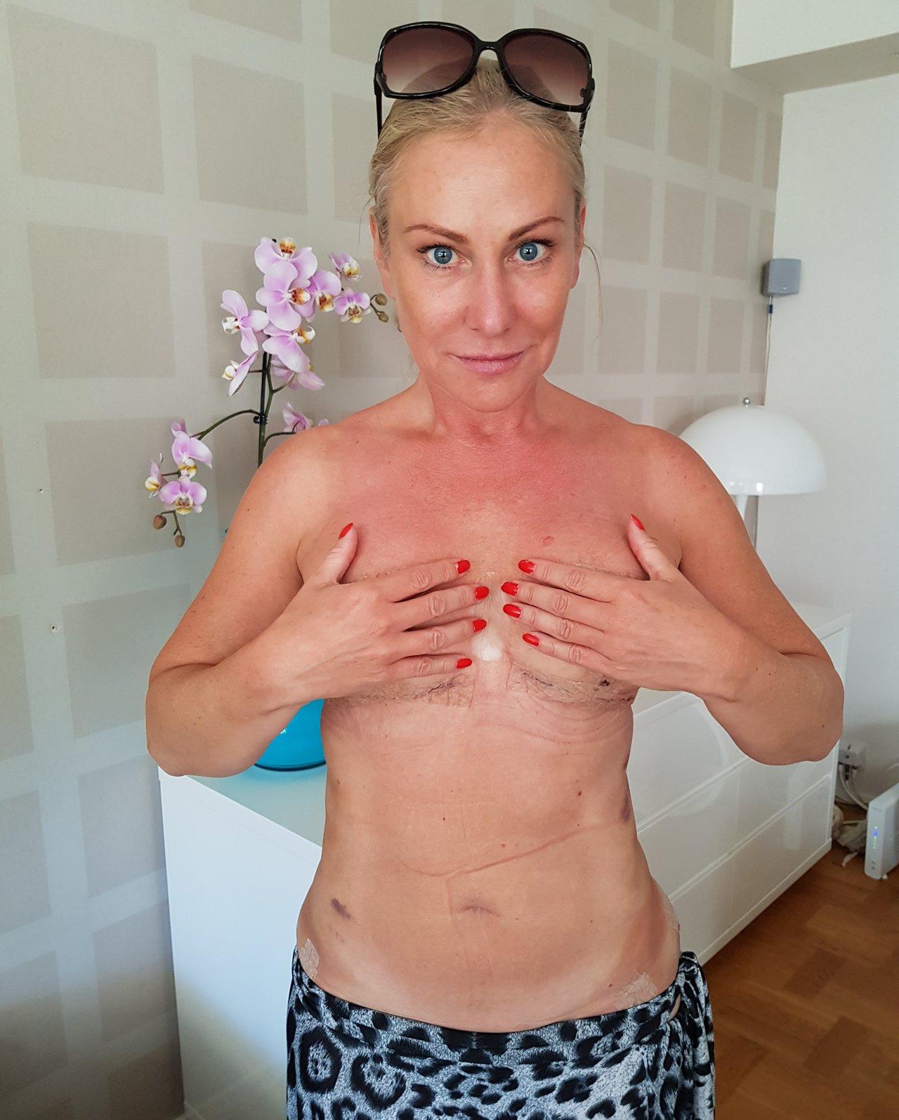 bröstimplantat före efter