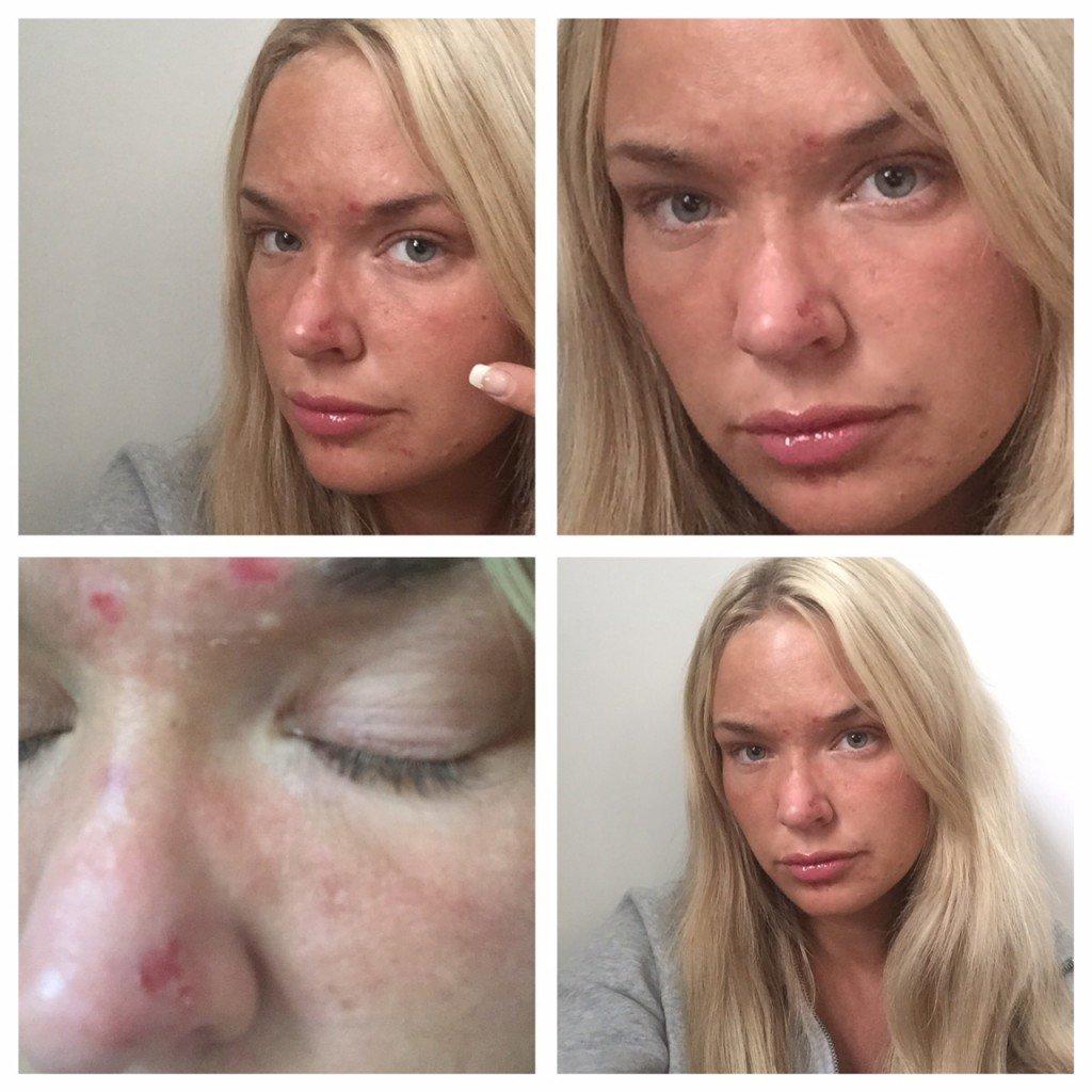 har jag rosacea? Har jag en hudsjukdom, rosacea kräm, rosacea symptom, rosacea medicin, rosacea behandling, rosacea ögon.