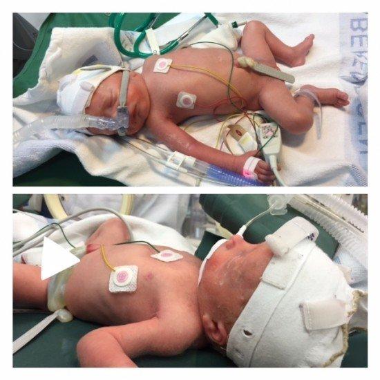 Neonatalvård