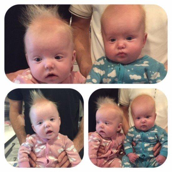 neonatalvård tvillingar