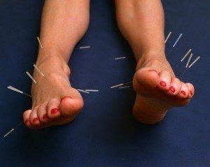dr nie shanghai akupunktur